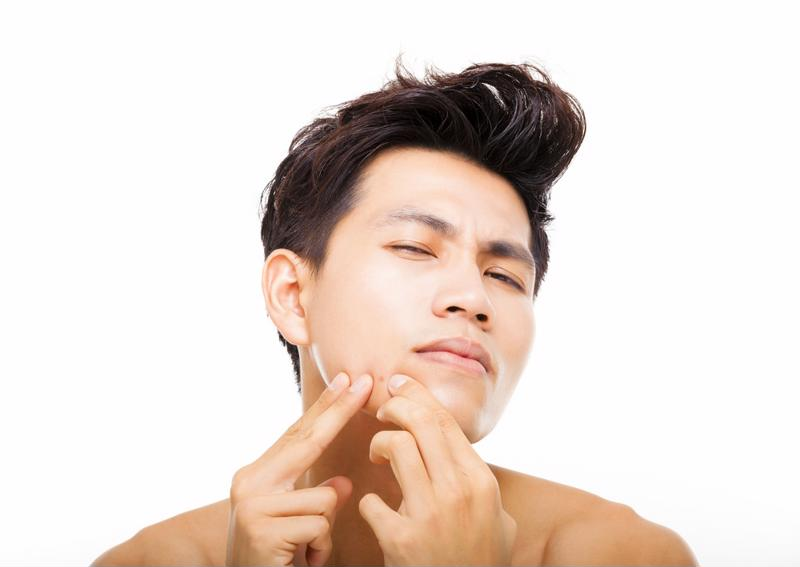 A man popping his zit.