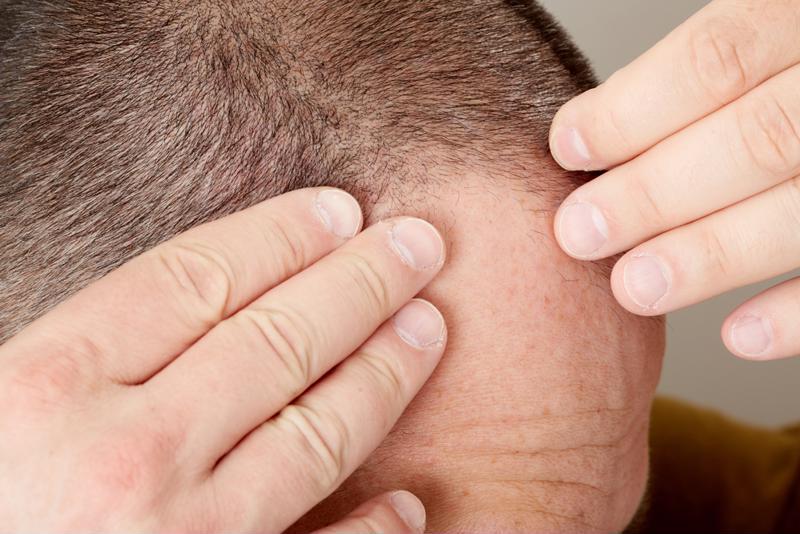 Scalp stimulation can improve hair health but not hair growth.