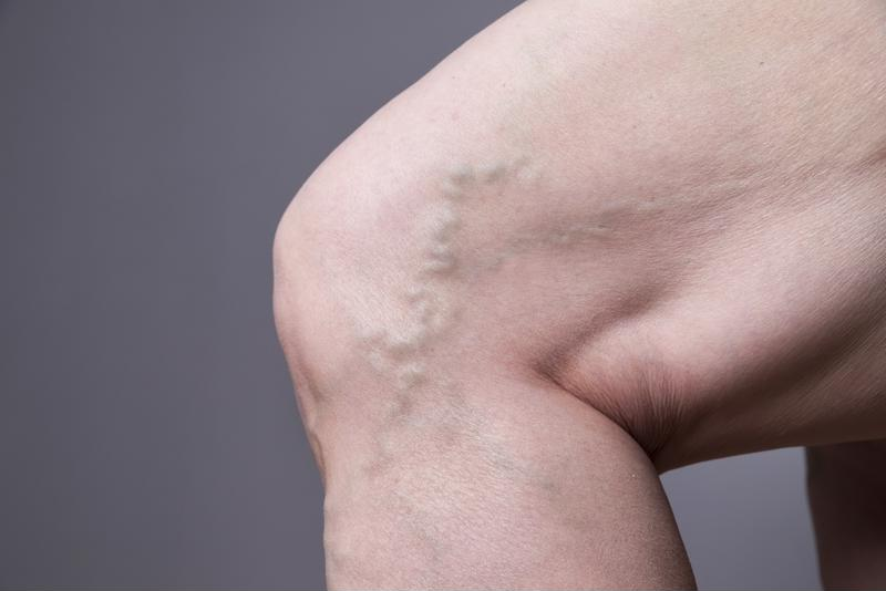 Spider veins are often most bothersome because of their appearance.